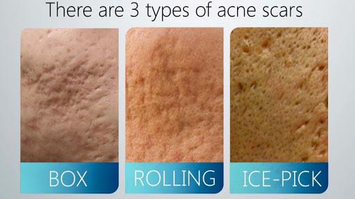 Các loại sẹo rỗ nhẹ thường gặp trên da mặt
